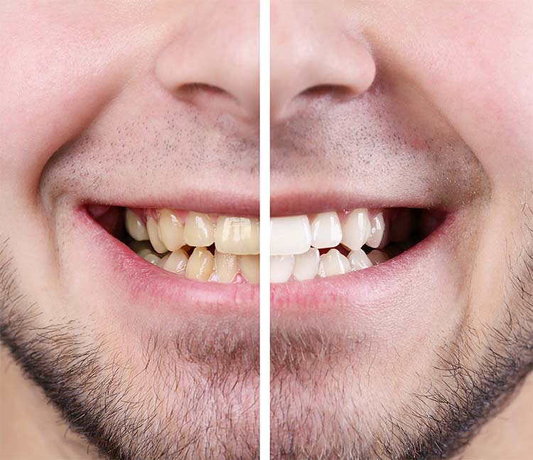 Teeth before after man